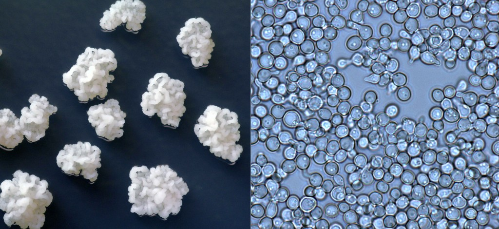 Colonies of Zygosaccharomyces growing on media in the lab (left). Cells of this yeast viewed under the microscope at 1000 times magnification (right).