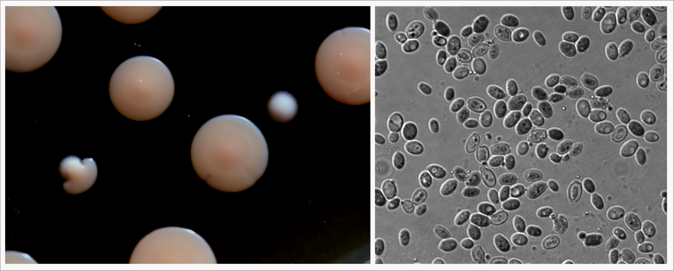 Left: K. barnettii  growing as colonies.  Both the large pink colonies and the small white colonies are K. barnettii  Right: K. barnettii cells at magnification.