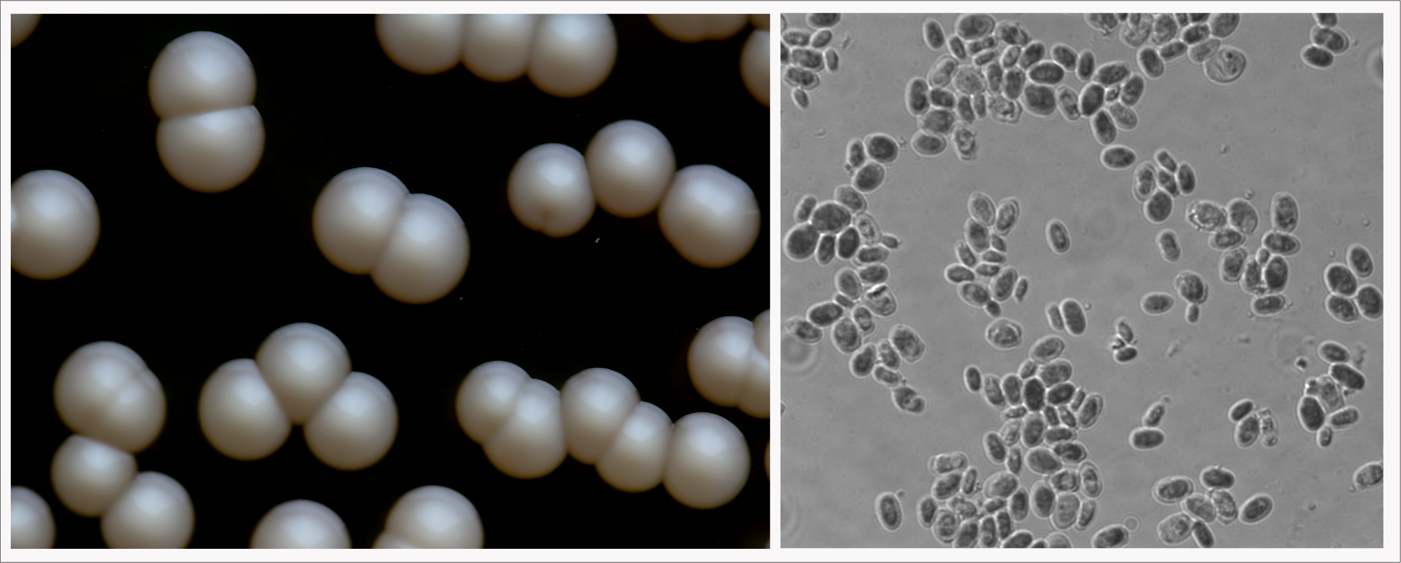 Left: K. bulderi are growing as colonies on the left.  Right: K. bulderi cells at magnification.