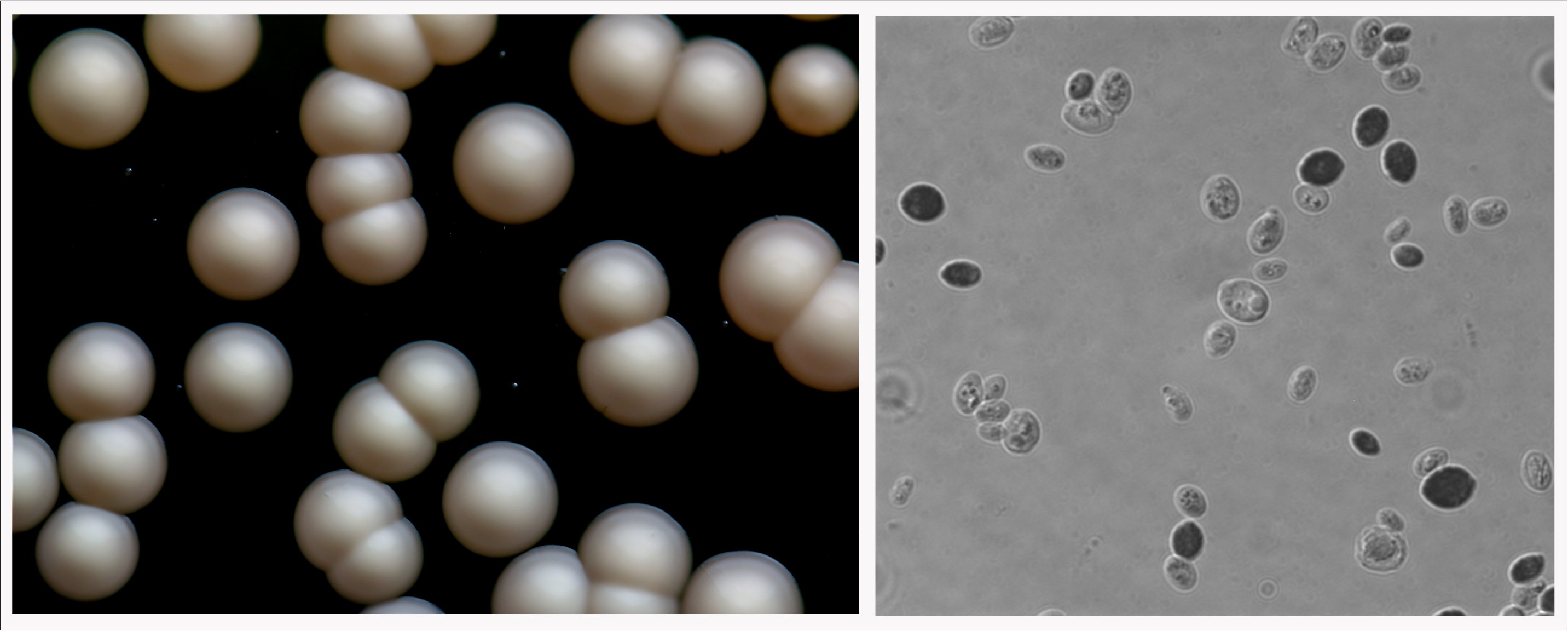 Left: K. exigua are growing as colonies.   Right: K. exigua cells at magnification.