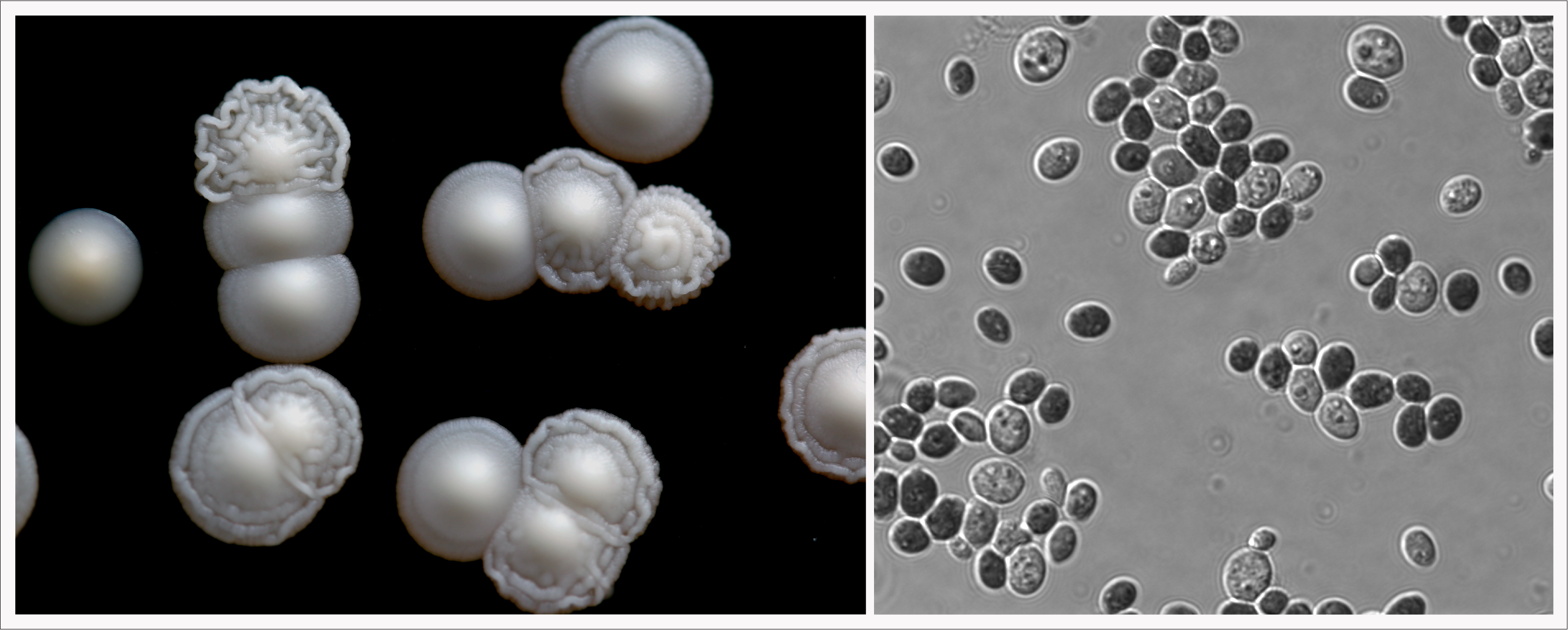 Left: K. humilis is the smallish, pale orange/white colony at the very left (the other colonies are Saccharomyces cerevisiae).  Right: K. humilis cells at magnification.