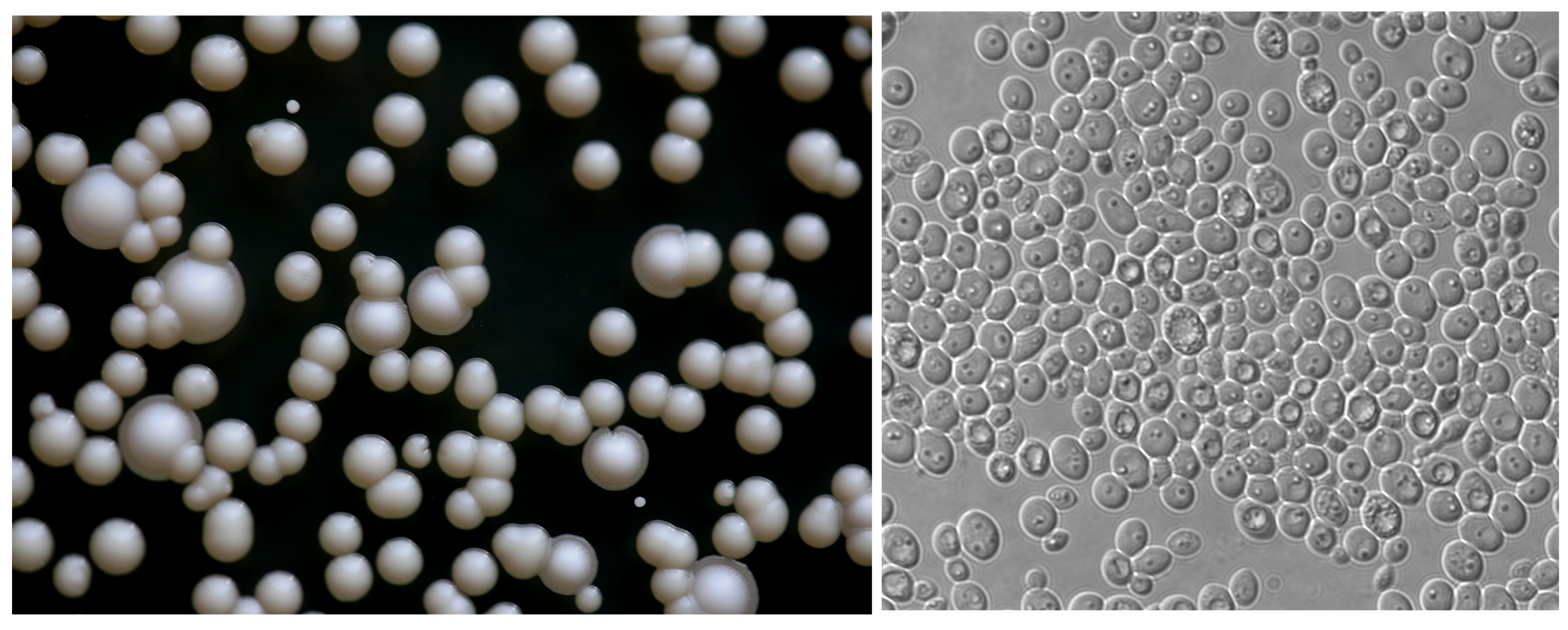 Left: K. naganishii  growing as colonies.  The smaller shiny colonies (without rings around them) are K. naganishii  Right: K. naganishii cells at magnification.