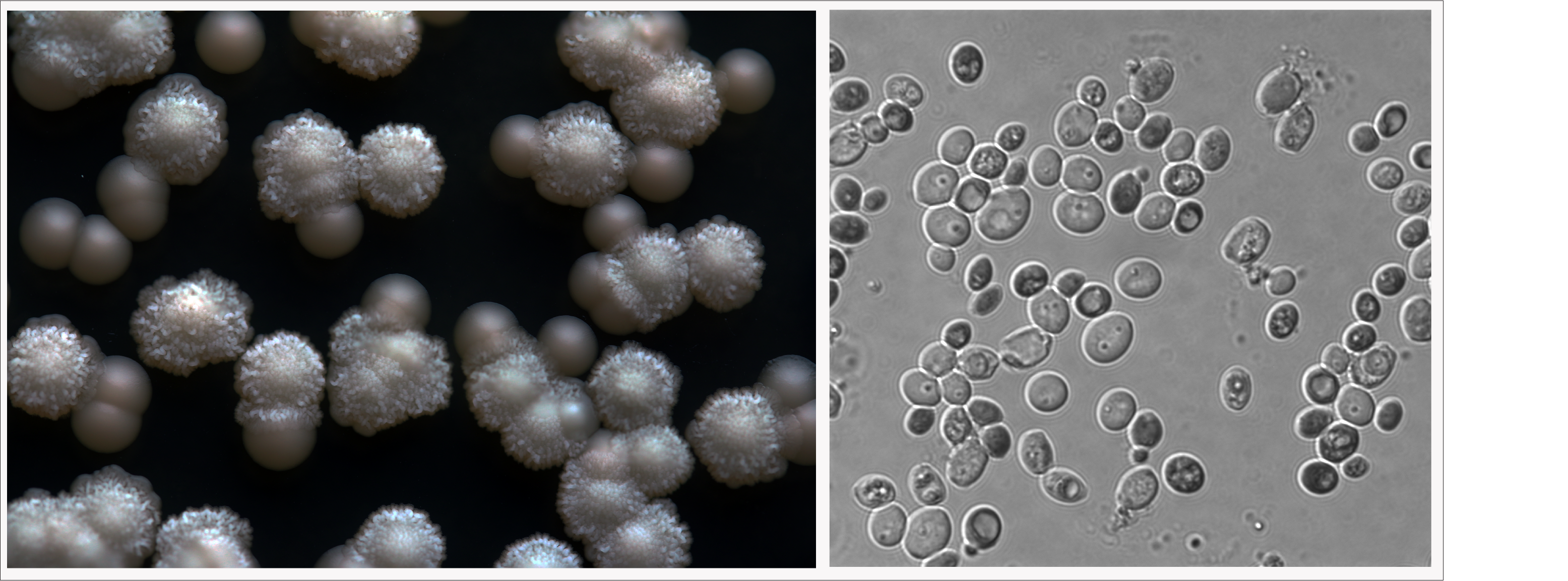 Left: K. servazzii are the smooth, tan colonies. Right: K. servazzii at magnification.