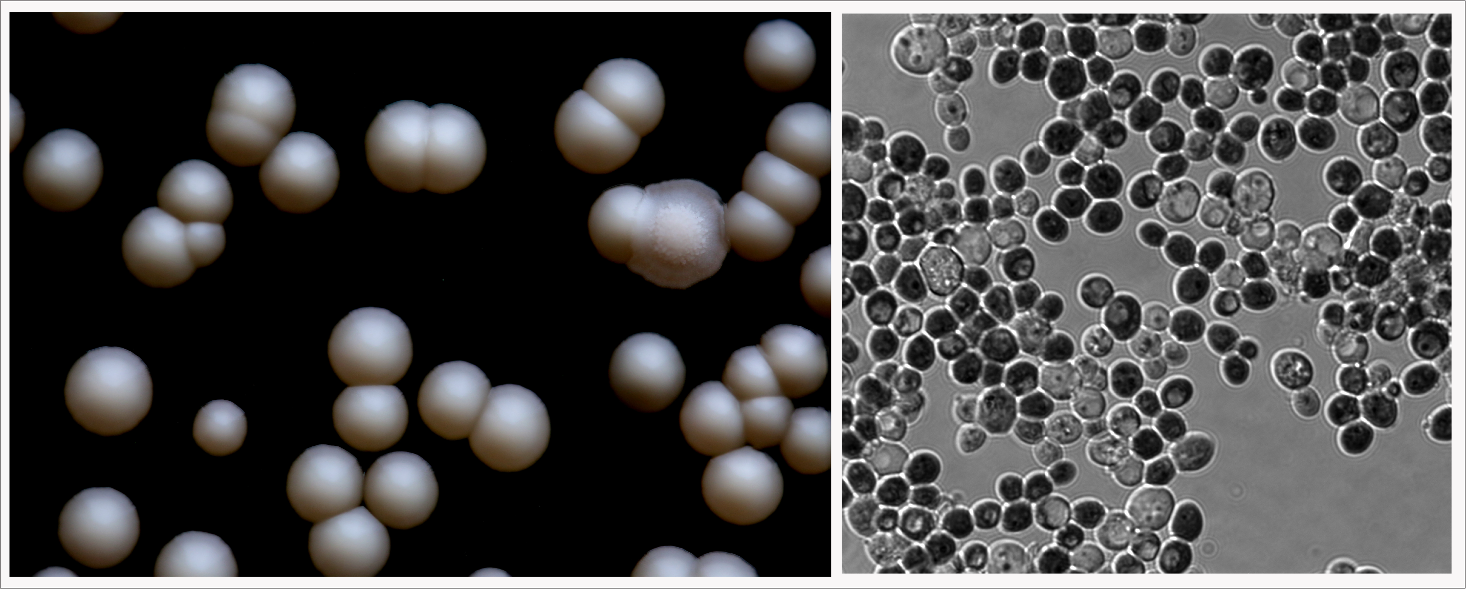 Left: K. unispora are the smooth, round colonies.  The colony with the fuzzy center is Wickerhamomyces anomalus.  Right: K. Unispora cells at magnification.