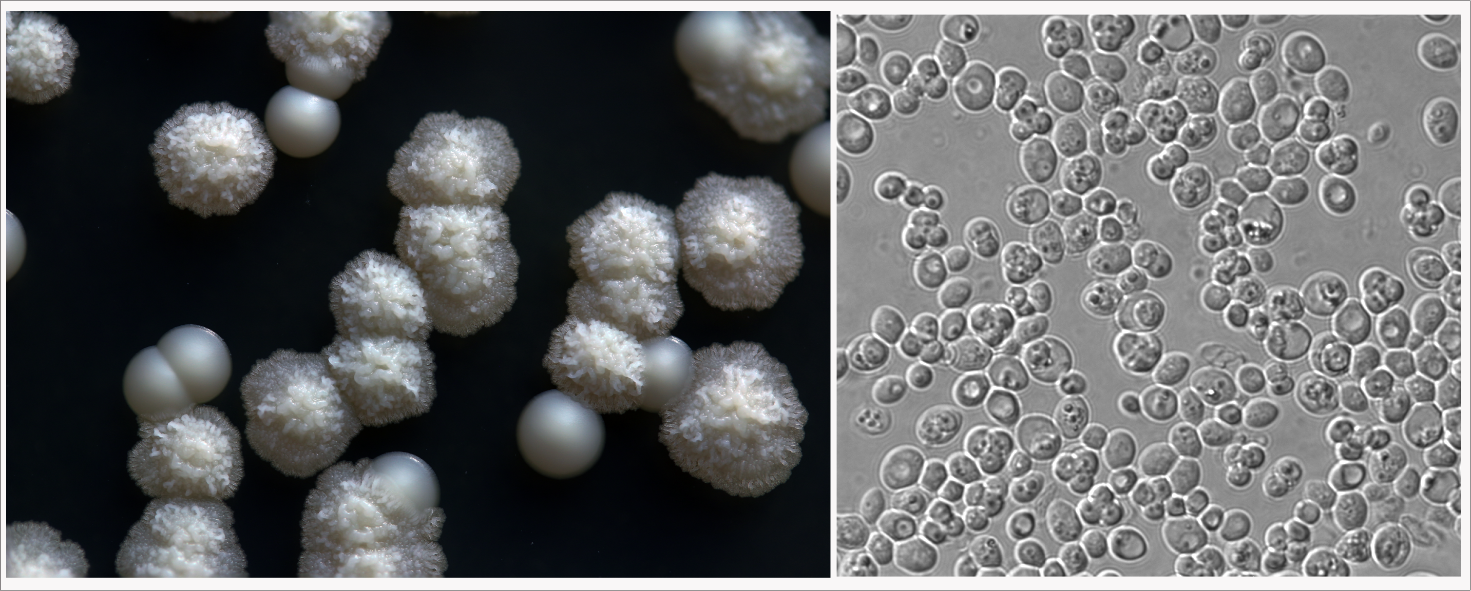 Left: N. castellii are the smaller, smooth white colonies.  The fuzzy colonies are Pichia fermentans.  Right: N. castellii cells at magnification.